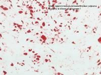 Фоамиран зефирный 1метр X 2метра/ 2метра/1мм (мрамор-красный)
